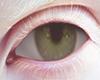 ☺ Green Eyes ll