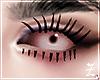 $ Infected Eye / Left