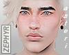 . [asteri] 黄 freckles