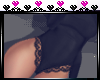 [N] RL Sexy Lace bodysui