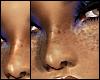 Freckles (Dark)