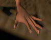 biitten nails