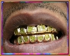 Iced Out Gold grillz