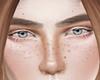 ♕ Freckles