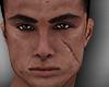 Jon Scars head