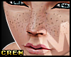 Tc. Kid Freckles Req
