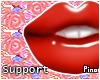 P! 15k Support Sticker