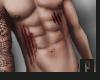 Body Scars