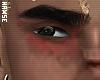 my birthmark