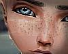 Tc. Freckles