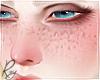 Add-On Freckles -Matt