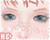 KoeChucky Freckles