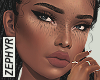 . Chenai - freckles