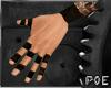 !P Taped Brown Wrist