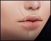 Custom ~ Mouth Scar