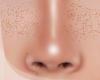 .PRETTY. Nose highlight