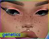 soft freckles